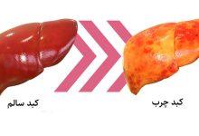 کبد-چرب-چیست-merspharma